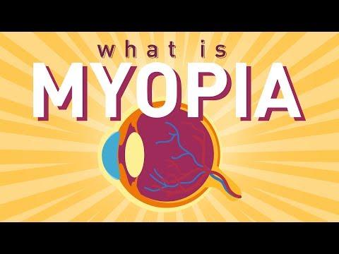 myopia ajánlások csepp homályos látás esetén