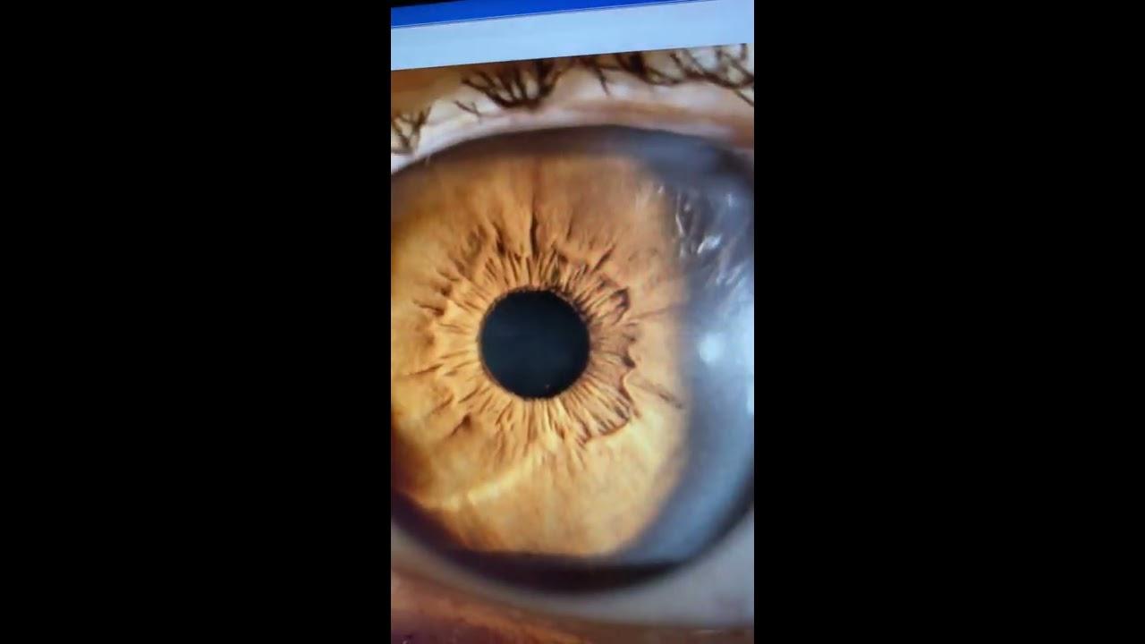torna a szemre video hyperopia fejfájás és látás élesen esett