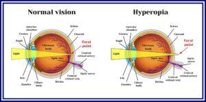hyperopia plusz 2 javítja a látást badami
