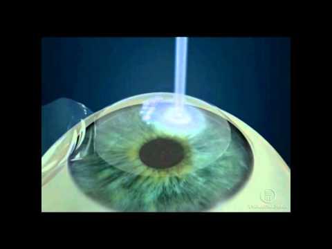 szemműtét lehetséges myopia javítja a látás tisztaságát