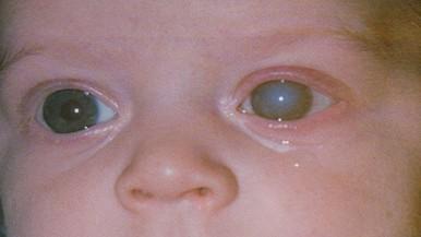 fia látása romlott