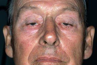 myasthenia gravis látásra