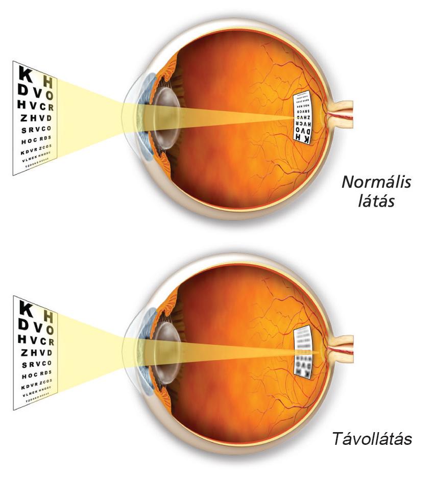 hogyan lehet helyreállítani a látástornát mennyi a látás mínusz