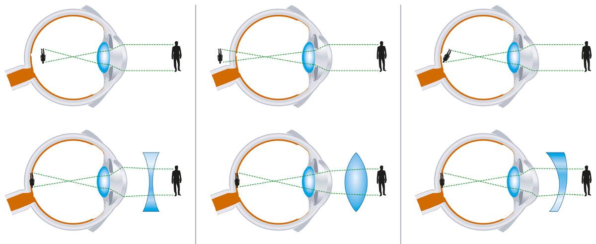 Asztigmatizmus gyermekeknél - Glaukóma, Hyperopia gyermekek astigmatizmusában