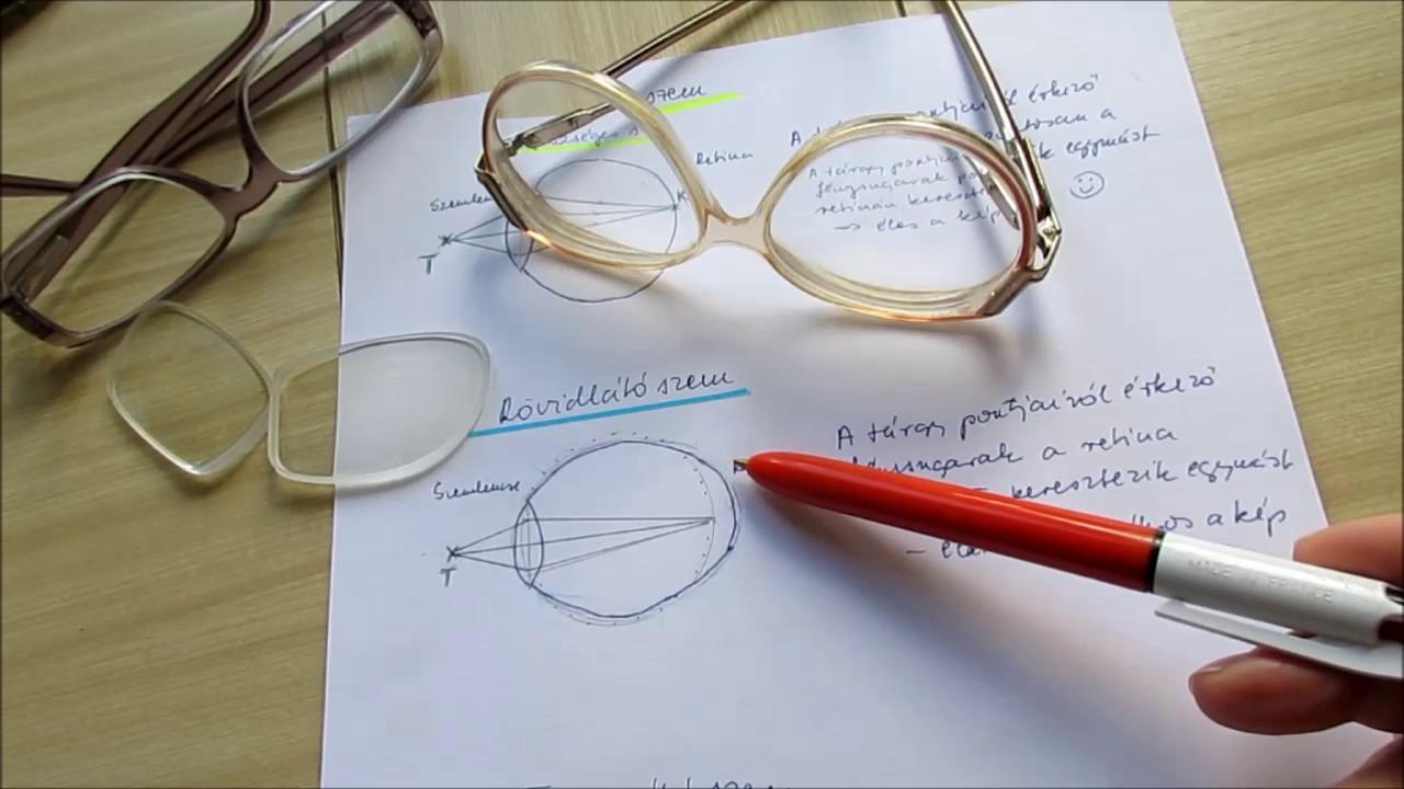 videó, amely megvakít su jock látás helyreállítása