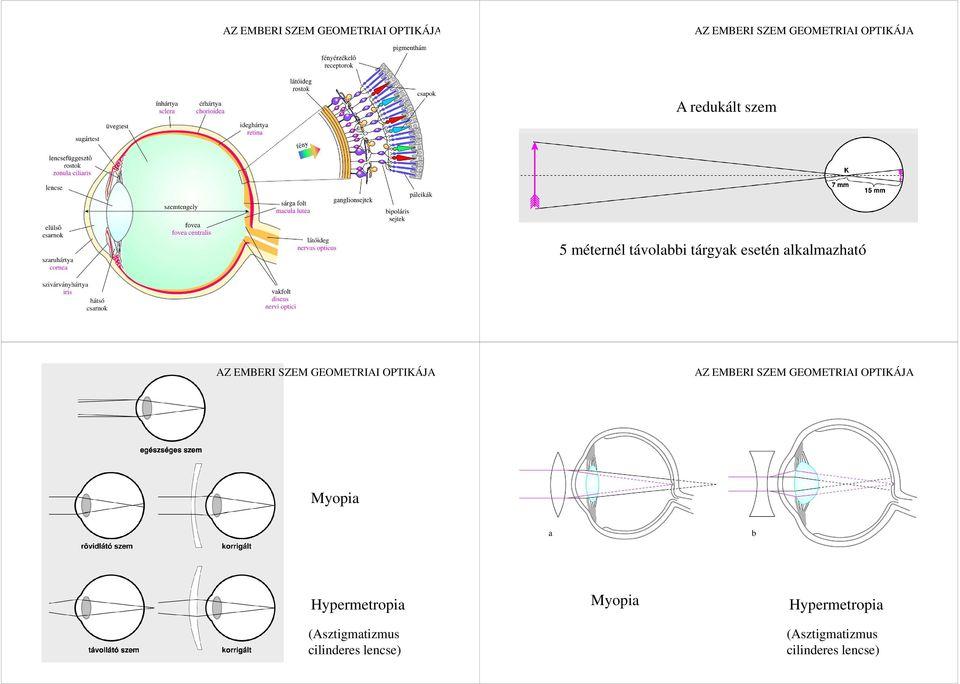 myopia és hyperopia optikai rendszerek gyakorlatok a látás és a szem számára