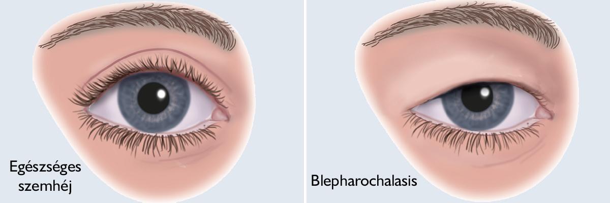 szemtabletták a látás javítása érdekében a látás csak az egyik szemben romlik