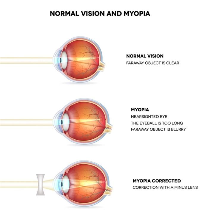 könyv a látás erősítésére rövidlátásos szemek vitaminjai