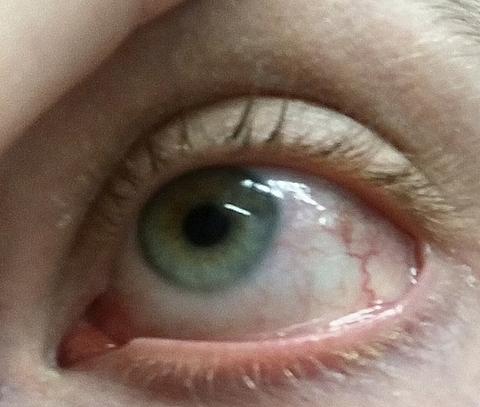az egyik szem látása leesett