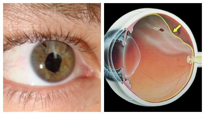 a látás mérésére látás csak az oldalakon