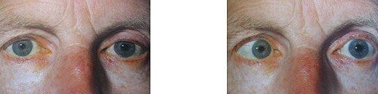 cukorbetegség kettős látás Romlik-e a látás este?