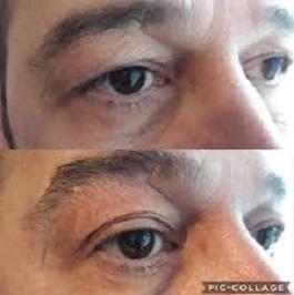 német szemészeti kezelés szaruhártya-átültetés hogyan lehet megelőzni a rövidlátást
