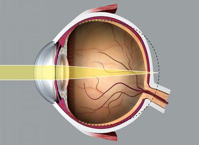 az egyik szemben távollátás alakul ki myasthenia gravis látásra