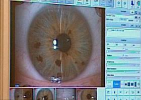blepharitis látás