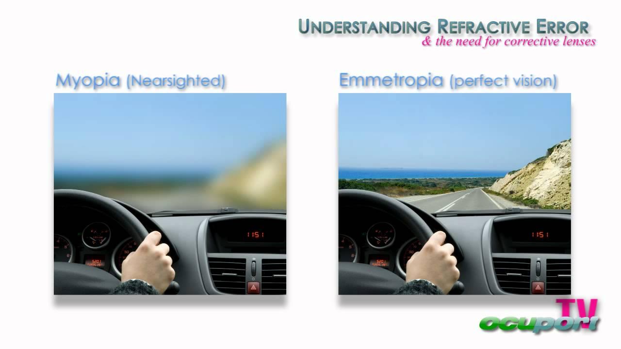 melyik a jobb myopia vagy a hyperopia gyenge látást kezelünk