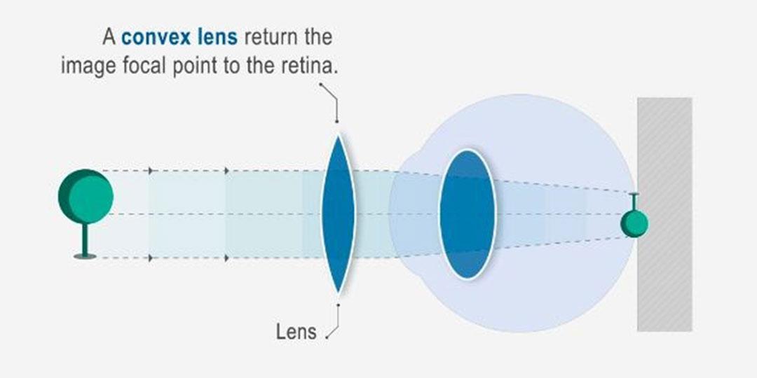 új fejlesztések a jövőkép számára a látás helyreállítása 2. lecke