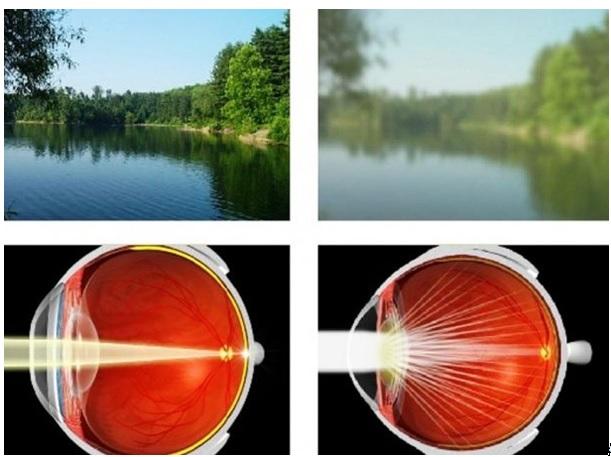 emberi látás 2 5 rövidlátás mi
