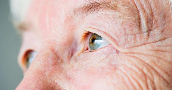 fizikai megterhelés után a látás romlik csíkos látás