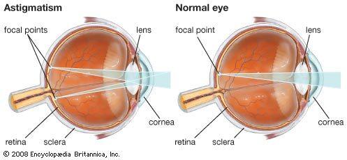 helyes látás azt normája és a látás patológiája