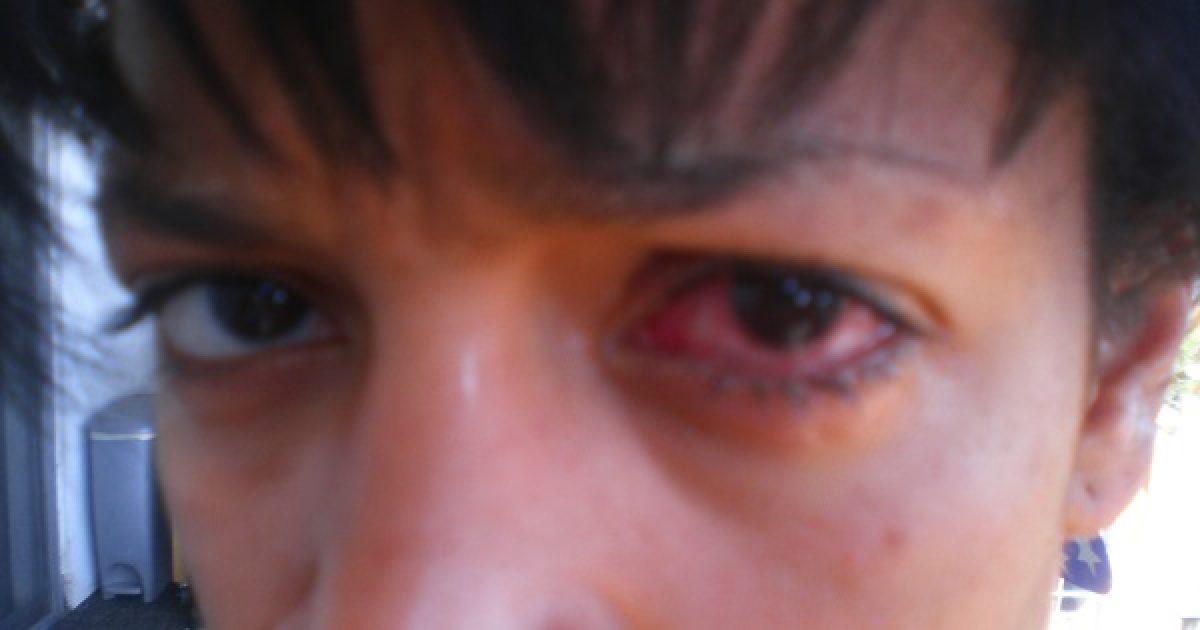 ennek eredményeként hogyan romlik a látás háromszögletű látás