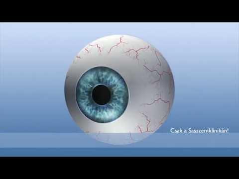 szemműtét rövidlátás videó a látás betegség szövődménye