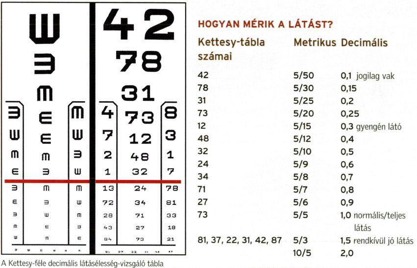 GOST látásvizsgálati táblázatok mi a myopia hyperopia?