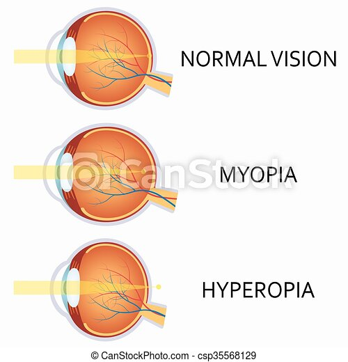 Astigmatizmus és hyperopia