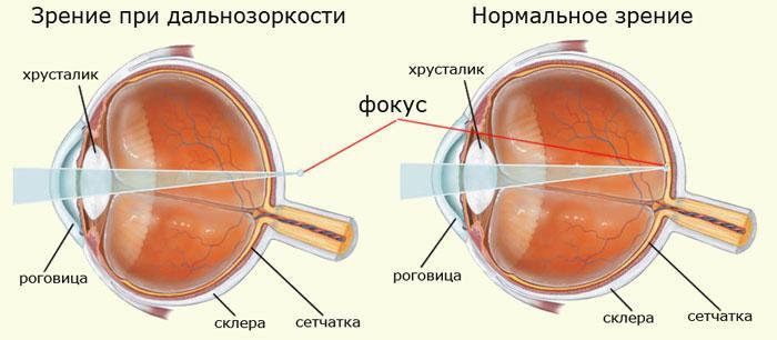 Mi a myopia és a hyperopia?