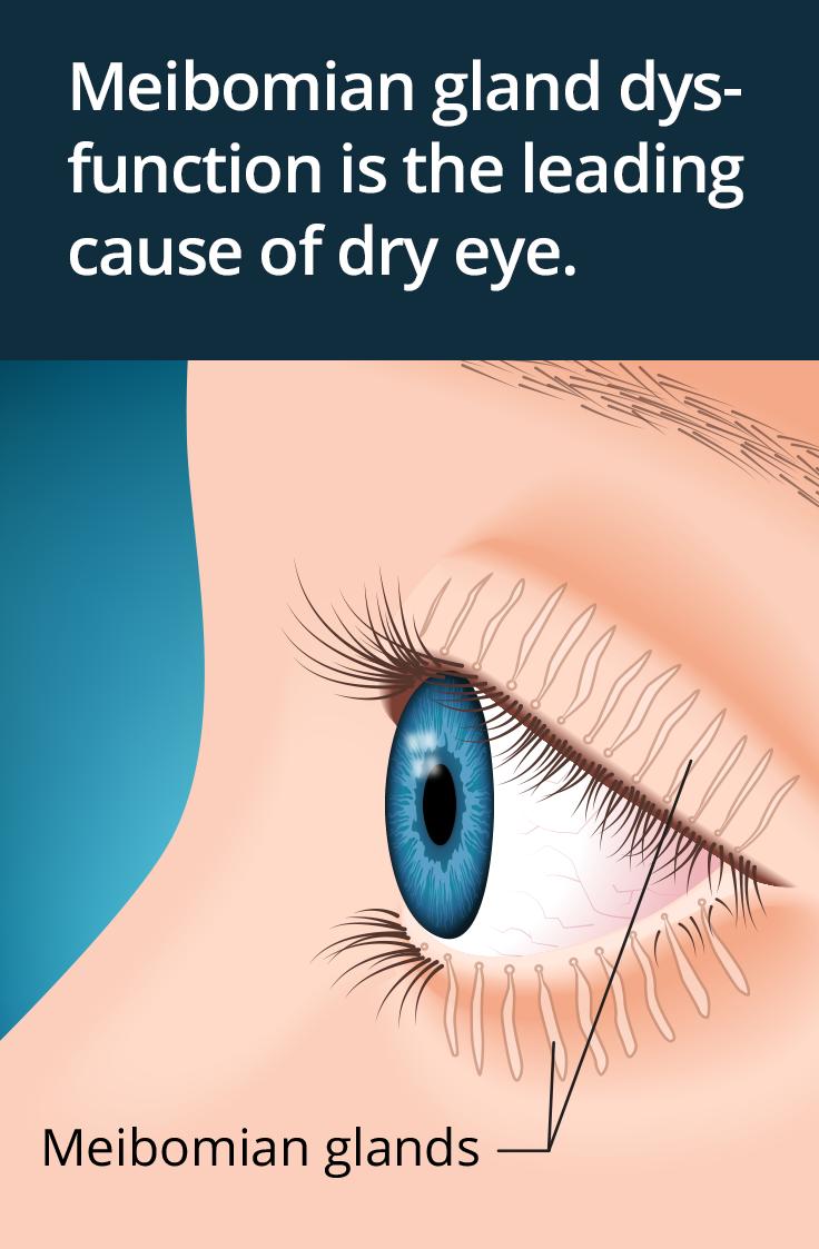 myopia kezelés atropinnal masszázs a látás javításához video néz