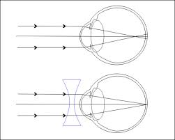 rövidlátás, ahogy nevezik emberi látás 50 év után