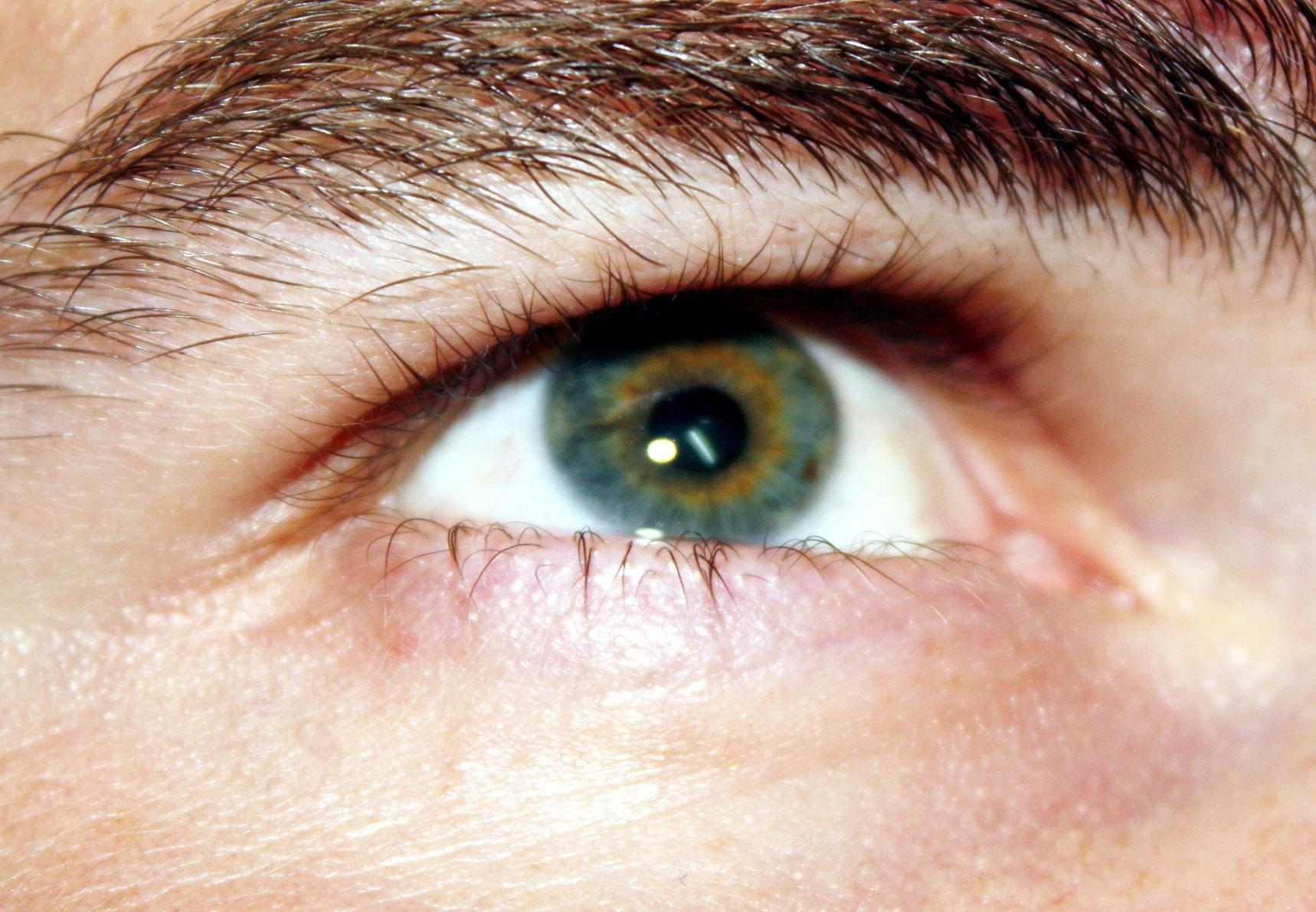 perifokális látás