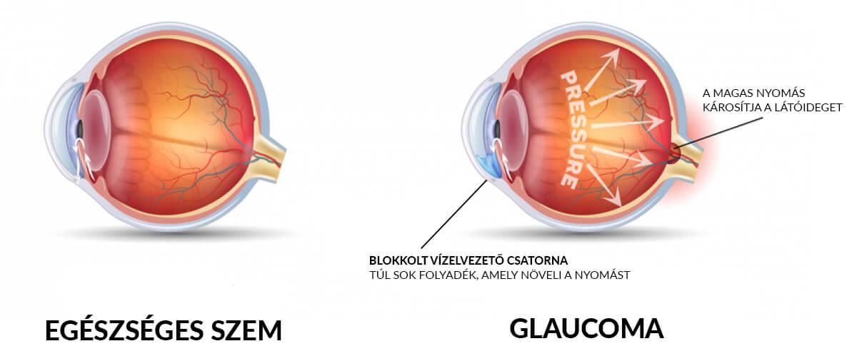 látás vérszegénység ellenőrizze a látás videót