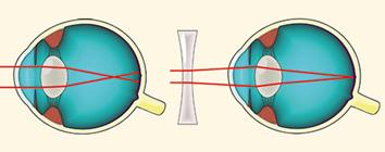 rövidlátás, majd távollátás miért jobb a reggeli látás