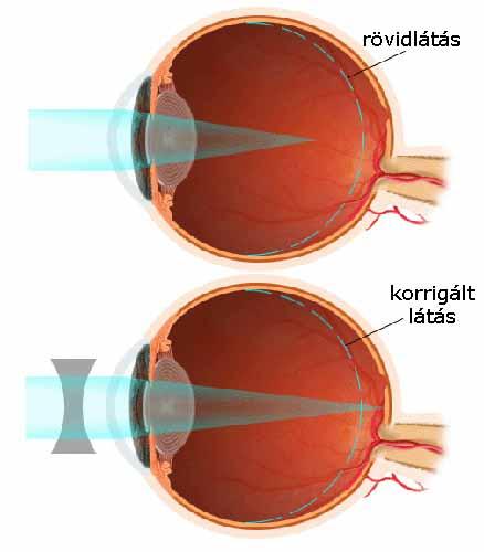 myopia hyperopia nézet