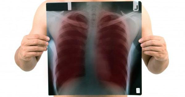 a tuberkulózis első gyanúja látás mínusz 8 hány százalék