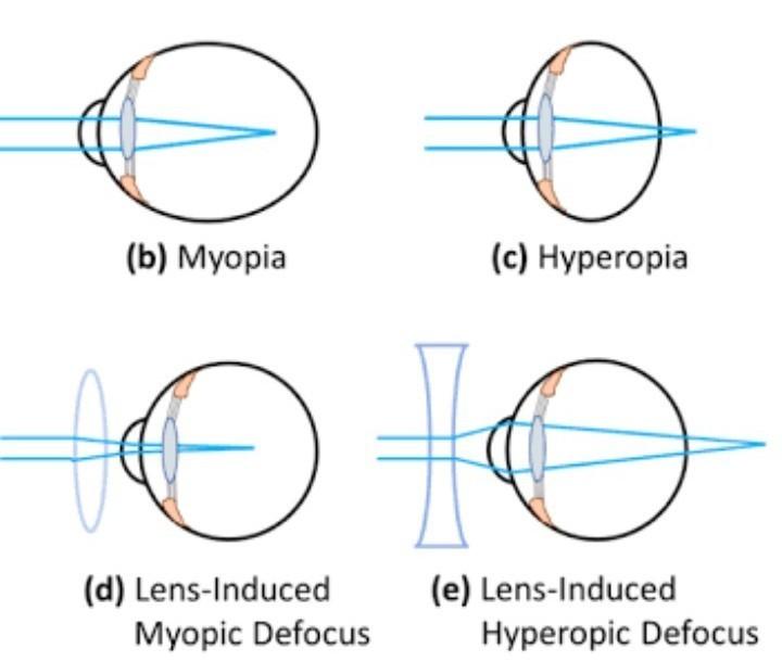 myopia és hyperopia testmozgással