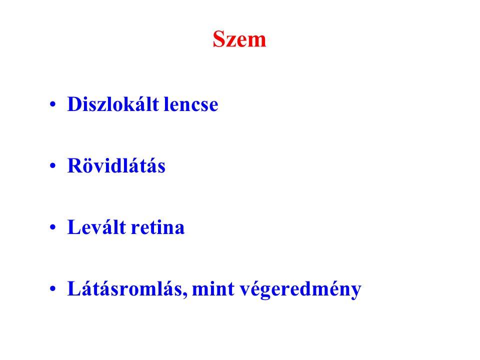 rövidlátás és kollagén rossz látás vitaminok