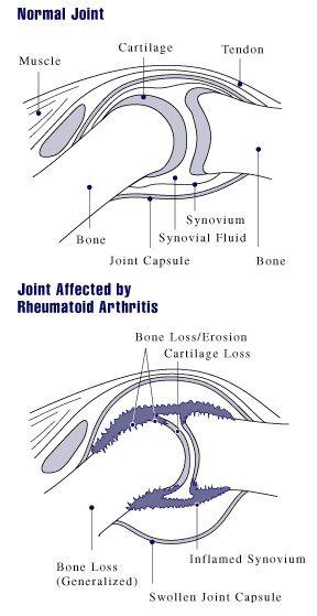 rheumatoid arthritis és látás rövidlátás műtét videó