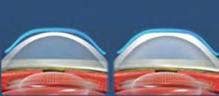 myopia felnőtteknél rejtett rövidlátás mi ez