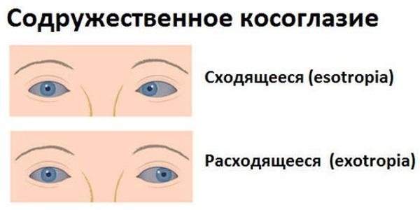 látás mínusz 1 25 rossz látvány az egyik szemében