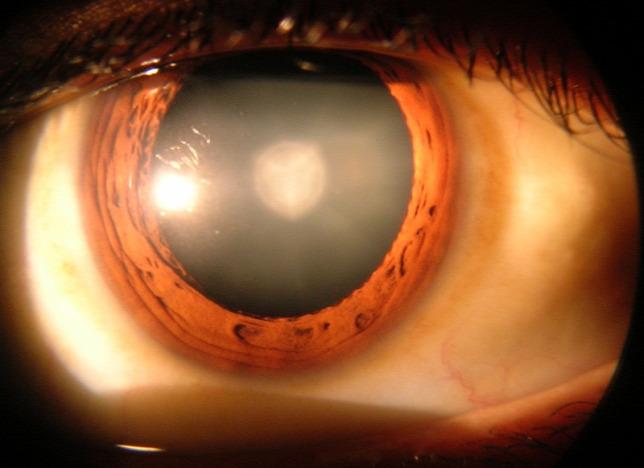 látásvizsgálati évek myopia műtét utáni ajánlások