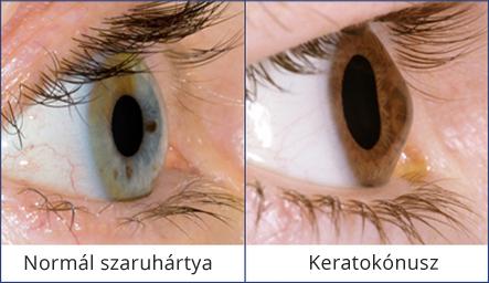 kitágult pupilla és látásélesség