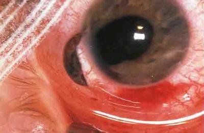 szemészeti szemkontúzió