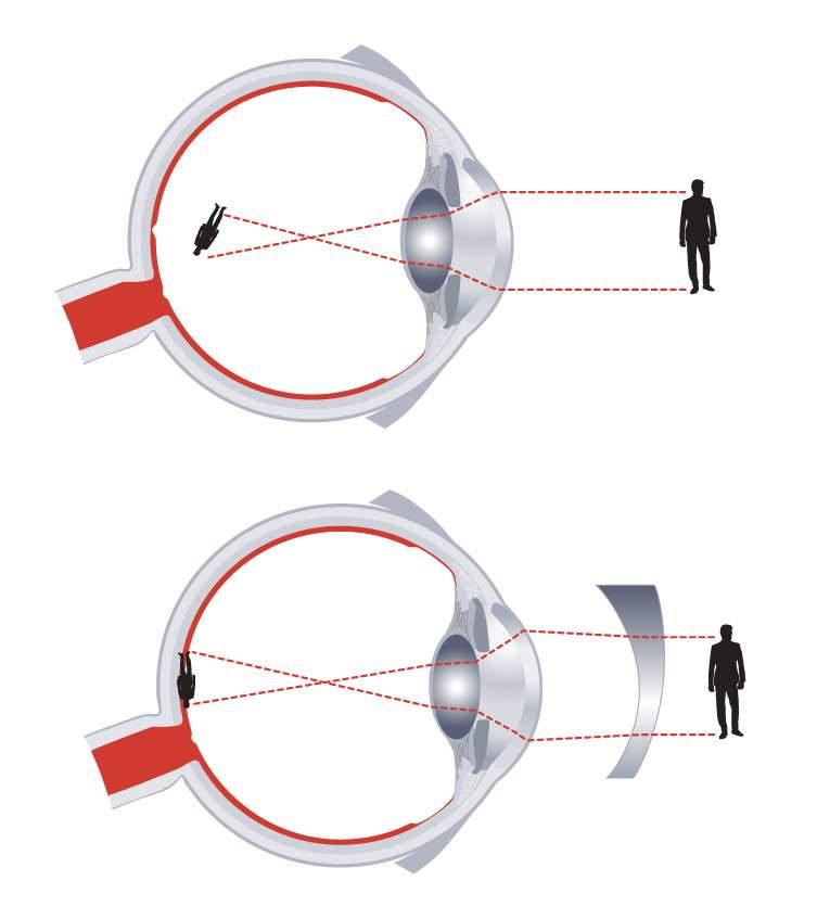 Miópia - Rövidlátás - STYLE OPTIKA