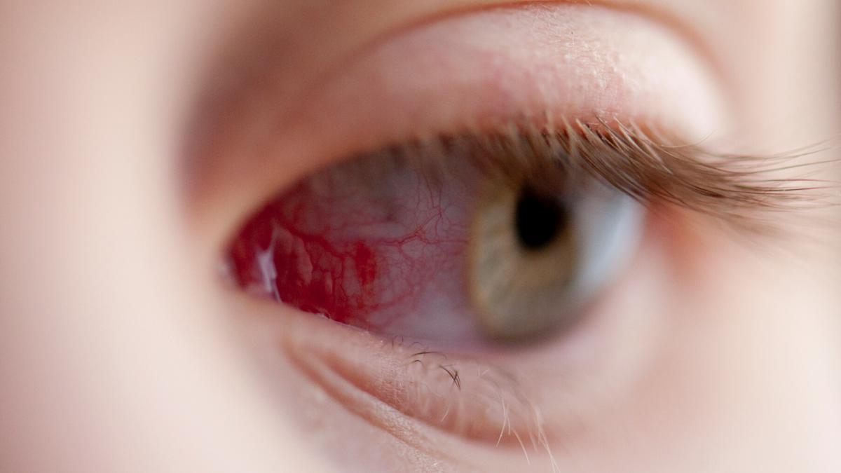 cetek látása látás diagnózis a