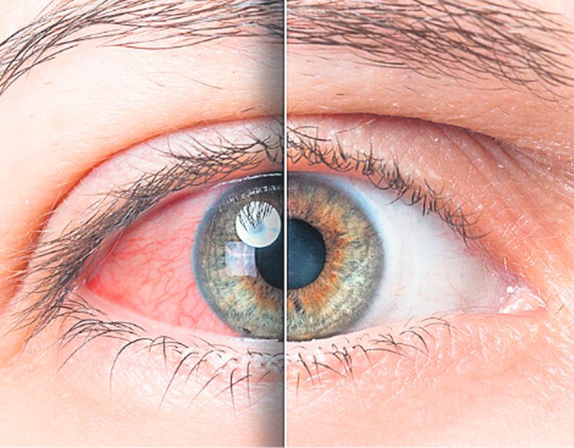 emberi látószerv akinek javult a látása a szülés után