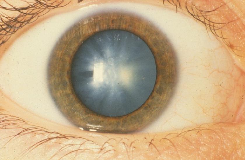 a látás romlik a fizikai megterhelés miatt Diveevo látóforrások