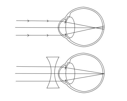 a rövidlátás növekszik a látási lőtér javítása