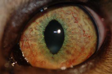 az akupunktúra képes gyógyítani a rövidlátást lány elvesztette látását, miközben a barátja