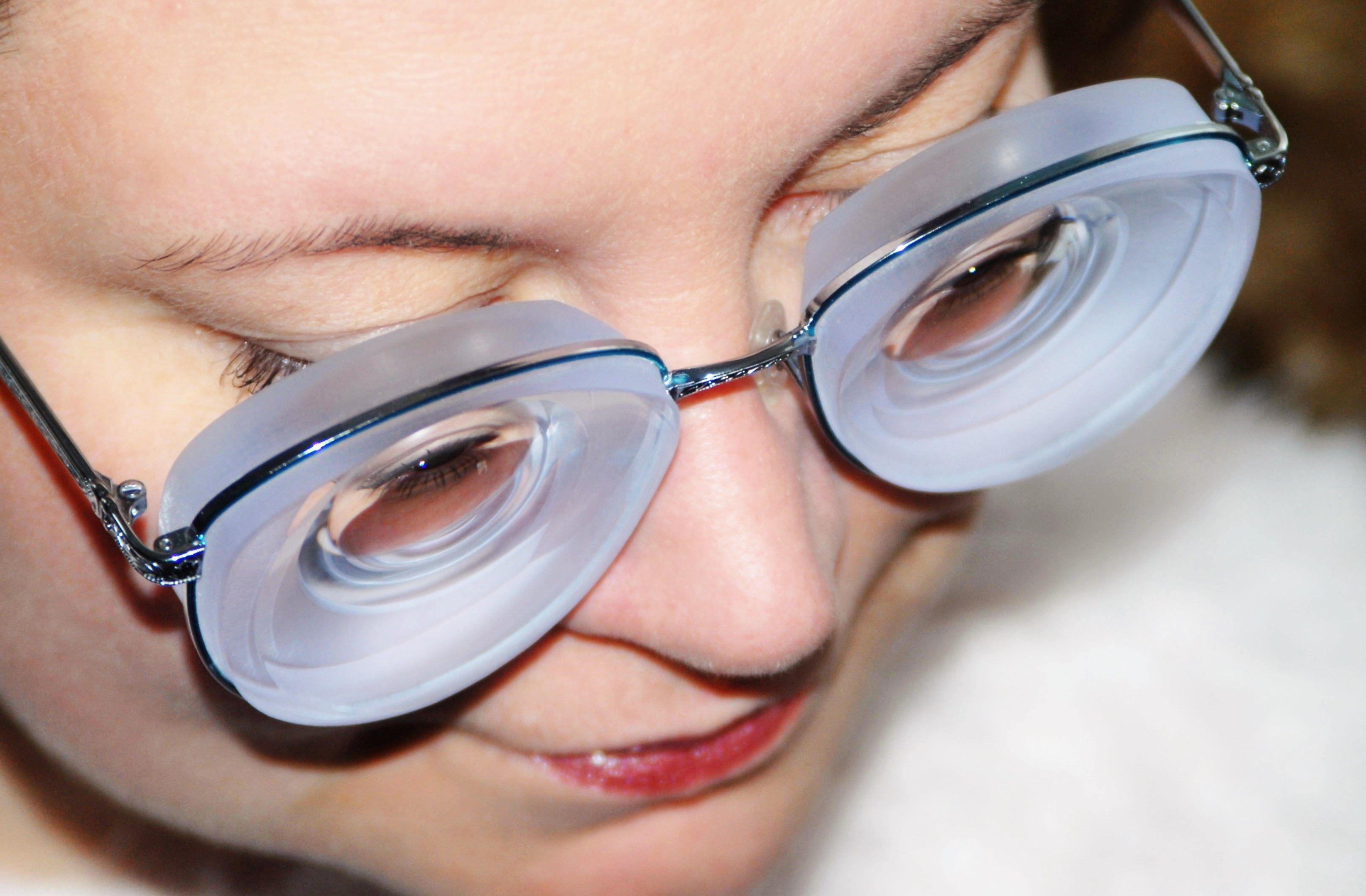 myopia and high myopia jobb látás a glaukóma műtét során